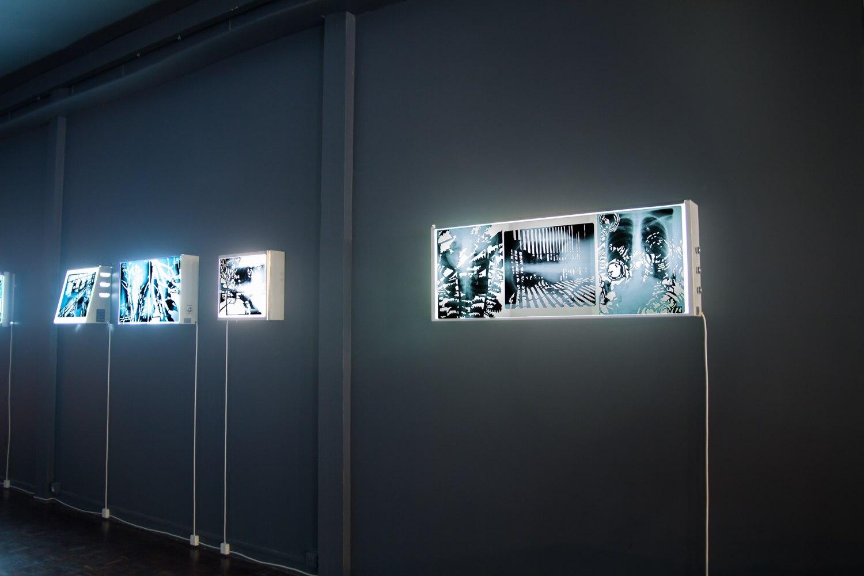 Frontière interne I (série), découpage des radiographies de poumons, 9 images 43cm x 35,5 cm, installation sur des négatoscopes, Centre Culturel Saint Exupéry, Reims, France.