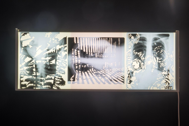 Frontière interne I & 2 (série), découpage des radiographies de poumons, 9 images 43cm x 35,5 cm, installation sur des négatoscopes, Centre Culturel Saint Exupéry, Reims, France.